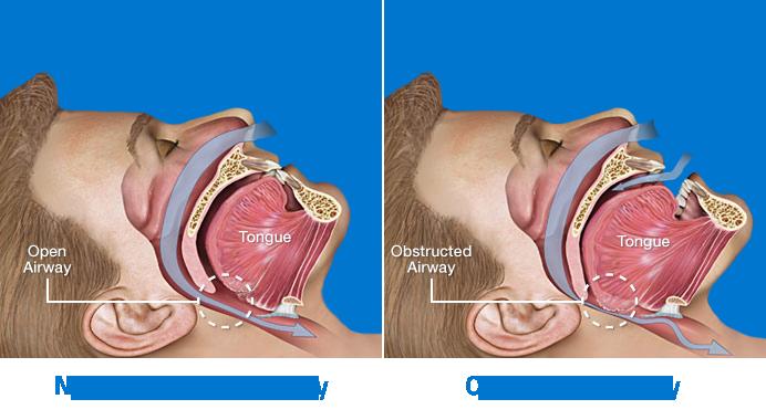229886-Anatomy-of-Obstructive-Sleep-Apnea