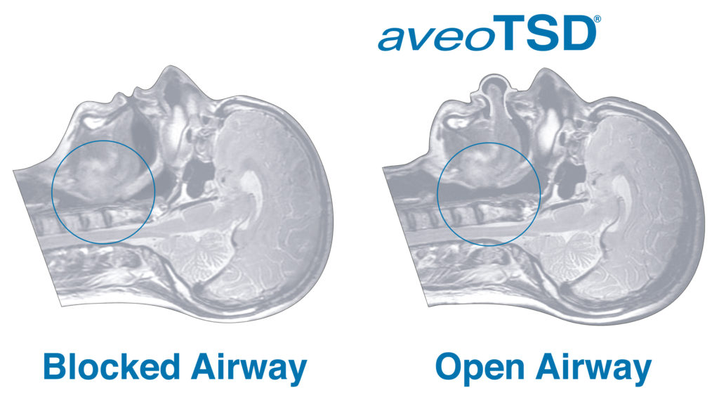 อุปกรณ์ยึดลิ้น (tongue stabilizing device,TSD)
