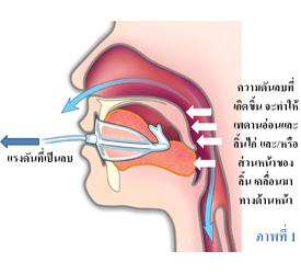 เครื่องทำให้เกิดความดันลบในช่องปาก (OPT) คืออะไร?