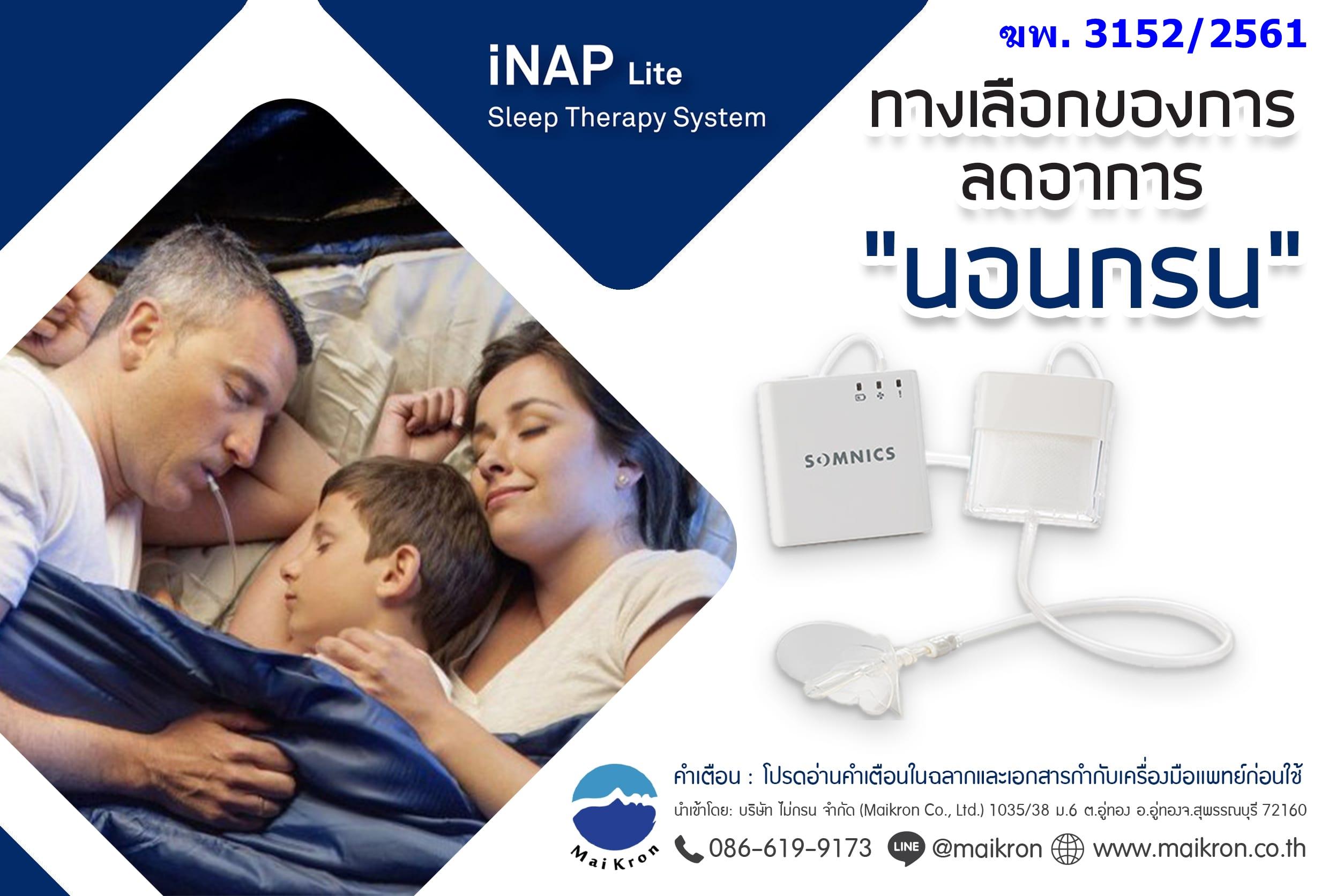 iNAP - ทางเลือกใหม่ของการบรรเทาภาวะหยุดหายใจขณะหลับ OSA